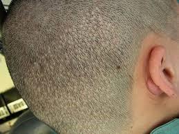 FUE Transplant Scar