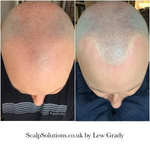 Before and After Scalp Micropigmentation
