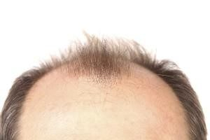 Androgenetic Alopecia (Male Pattern Baldness)