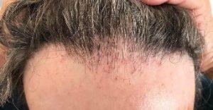 Frontal fibrosing alopecia