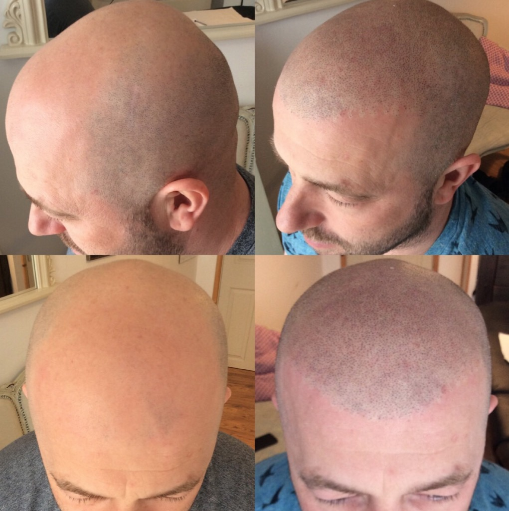 Scalp Micropigmentation (SMP)