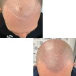 Failed Hair Transplant